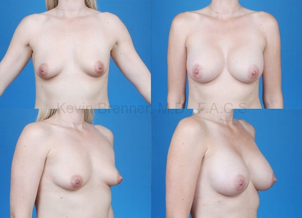 Tuberous Breast Gallery - Patient 10131336 - Image 1