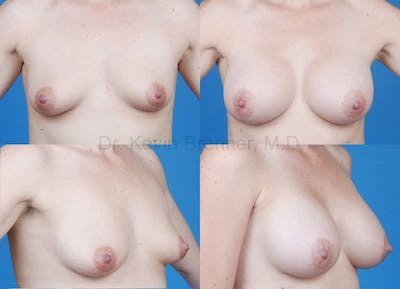 Tuberous Breast Gallery - Patient 10131337 - Image 5