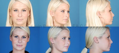 Revision Rhinoplasty Gallery - Patient 10131359 - Image 1