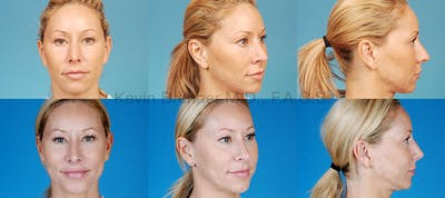 Revision Rhinoplasty Gallery - Patient 10131360 - Image 1