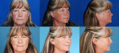 Revision Rhinoplasty Gallery - Patient 10131361 - Image 3