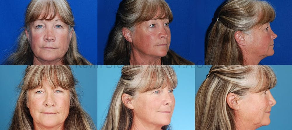 Revision Rhinoplasty Gallery - Patient 10131361 - Image 1