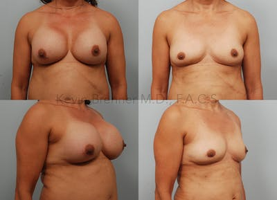Fat Transfer Post Explant Gallery - Patient 10131440 - Image 1