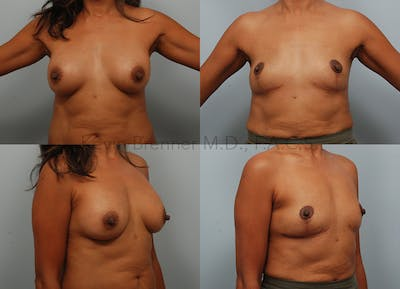 Breast Implant Removal Gallery - Patient 10131852 - Image 12
