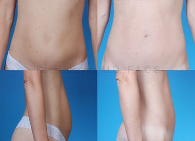 Mini Tummy Tuck Gallery - Patient 10131886 - Image 1