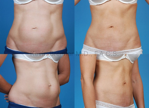 Mini Tummy Tuck Gallery - Patient 10131889 - Image 1