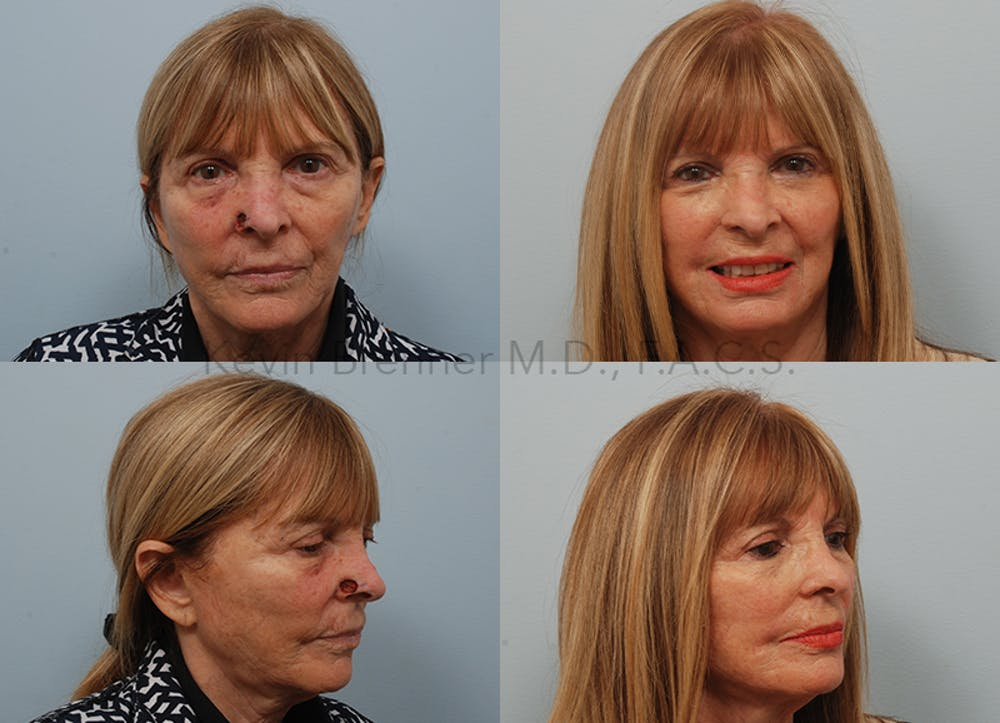 Skin Cancer Reconstruction Gallery - Patient 10132130 - Image 1