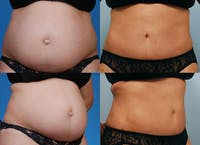Tummy Tuck Gallery - Patient 1482406 - Image 1