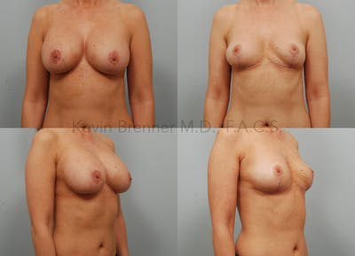 Breast Implant Removal Gallery - Patient 11258302 - Image 1