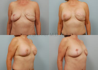 Breast Reconstruction Gallery - Patient 11258394 - Image 1