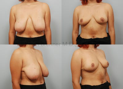 Breast Reduction Gallery - Patient 11258513 - Image 1