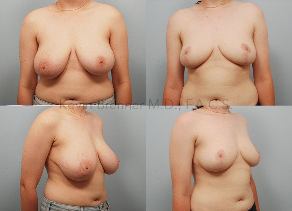 Breast Reduction Gallery - Patient 11258514 - Image 1