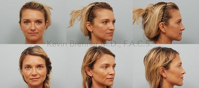 Rhinoplasty Gallery - Patient 11258837 - Image 21
