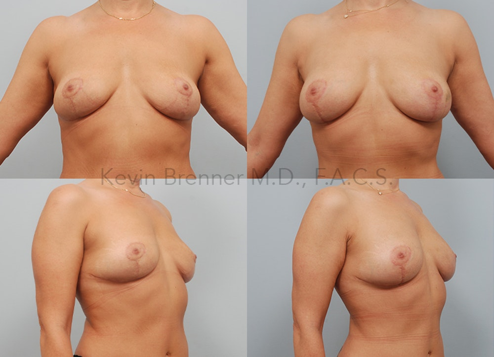 Fat Transfer Post Explant Gallery - Patient 11258879 - Image 1