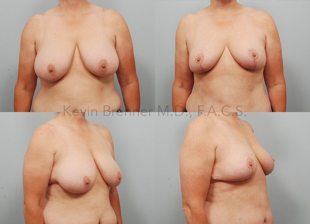 Breast Reduction Gallery - Patient 11904739 - Image 1