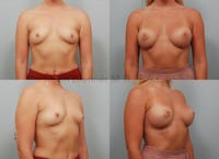 Breast Augmentation Gallery - Patient 11904741 - Image 1