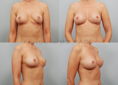 Fat Transfer Post Explant Gallery - Patient 11258304 - Image 1