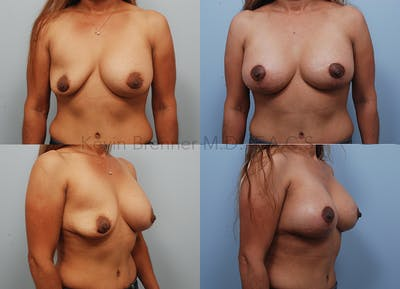 Breast Reconstruction Gallery - Patient 16862635 - Image 1