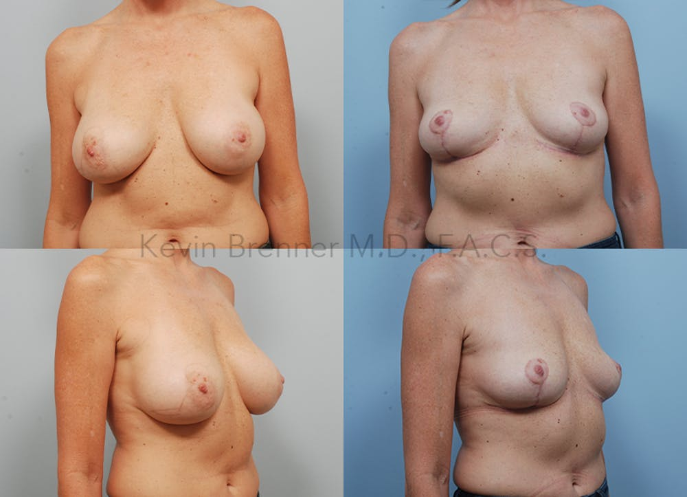 Breast Implant Removal Gallery - Patient 16862636 - Image 1