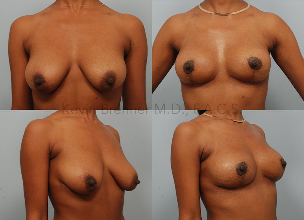 Breast Lift Gallery - Patient 26560689 - Image 1