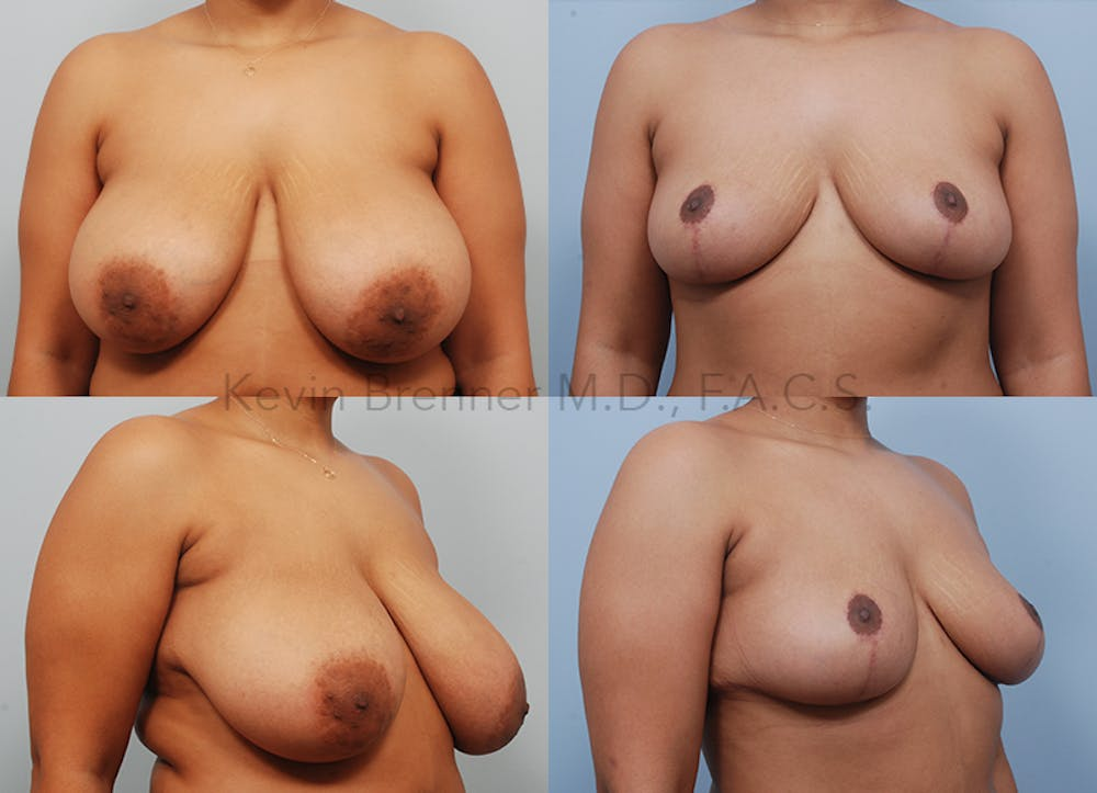 Breast Reduction Gallery - Patient 26560730 - Image 1