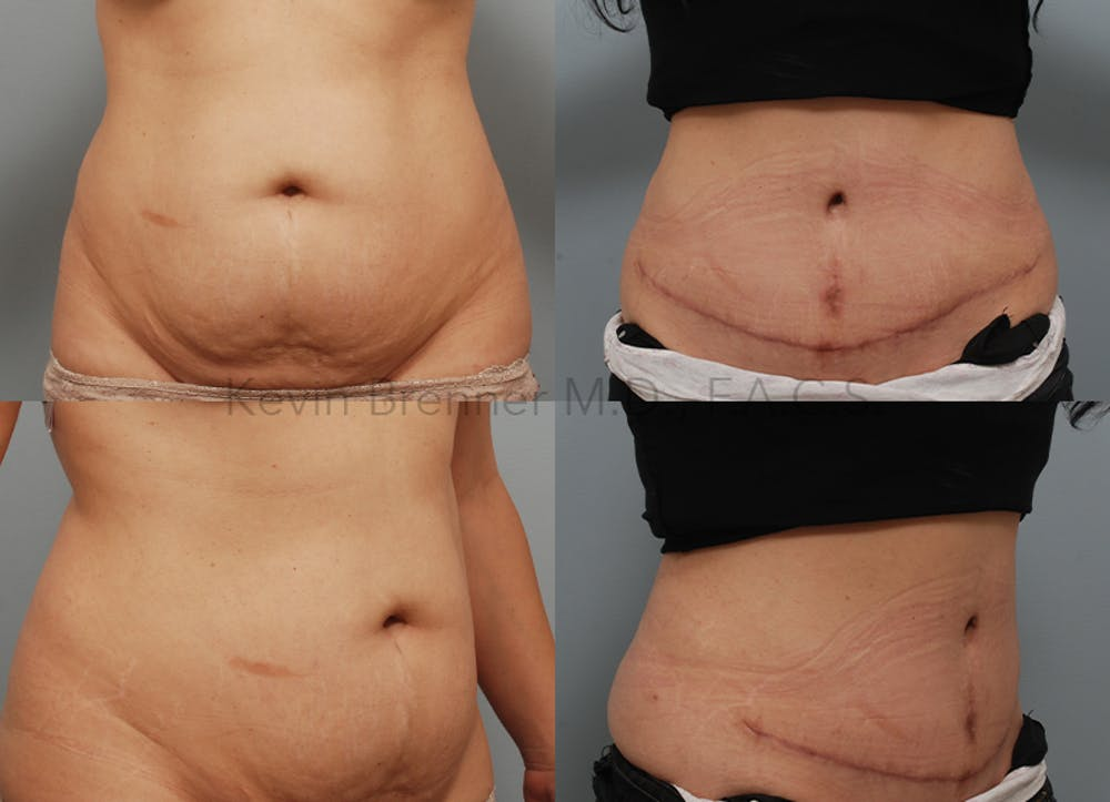 Tummy Tuck Gallery - Patient 26560802 - Image 1