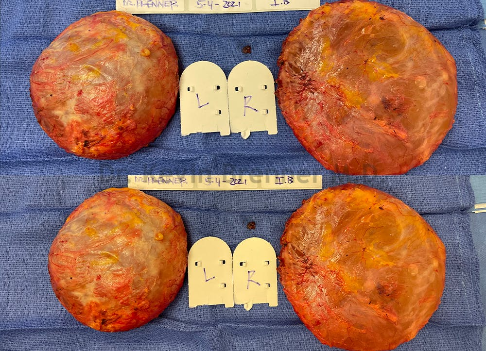 Capsular Contracture Gallery - Patient 50307982 - Image 1