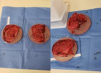 Capsular Contracture Gallery - Patient 50307992 - Image 1