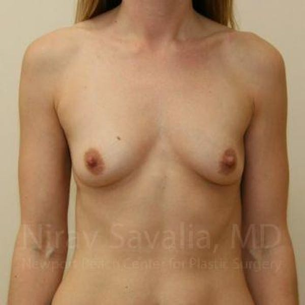 Breast Augmentation Gallery - Patient 1655442 - Image 1