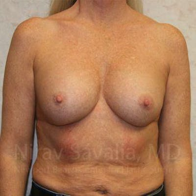 Breast Implant Revision Gallery - Patient 1655444 - Image 1