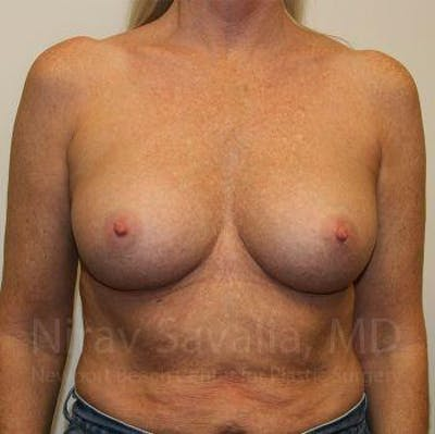 Breast Implant Revision Gallery - Patient 1655444 - Image 2