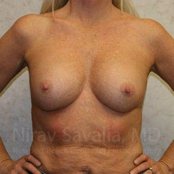Breast Implant Revision Gallery - Patient 1655444 - Image 3