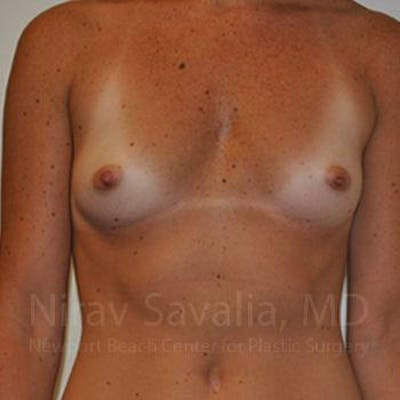 Breast Augmentation Gallery - Patient 1655445 - Image 1