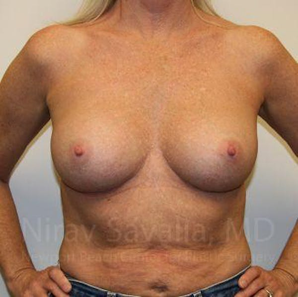 Breast Implant Revision Gallery - Patient 1655444 - Image 4