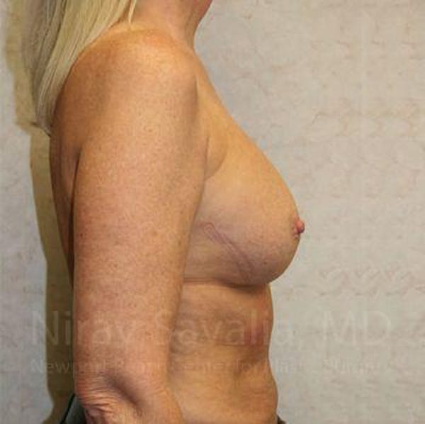 Breast Implant Revision Gallery - Patient 1655444 - Image 5