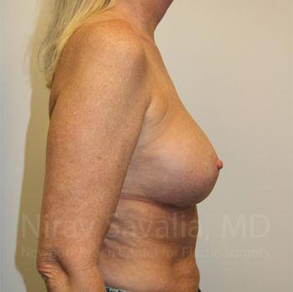Breast Implant Revision Gallery - Patient 1655444 - Image 6