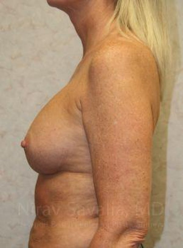 Breast Implant Revision Gallery - Patient 1655444 - Image 7