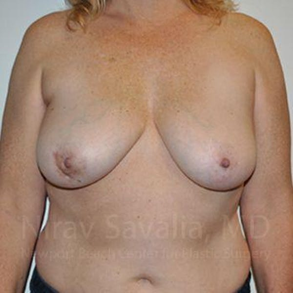 Breast Lift without Implants Gallery - Patient 1655446 - Image 1