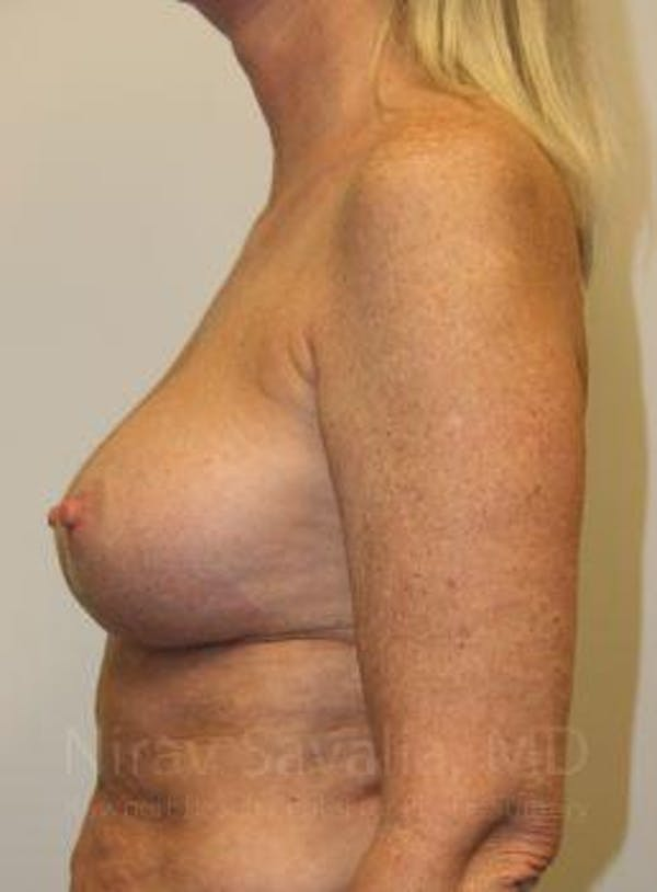 Breast Implant Revision Gallery - Patient 1655444 - Image 8