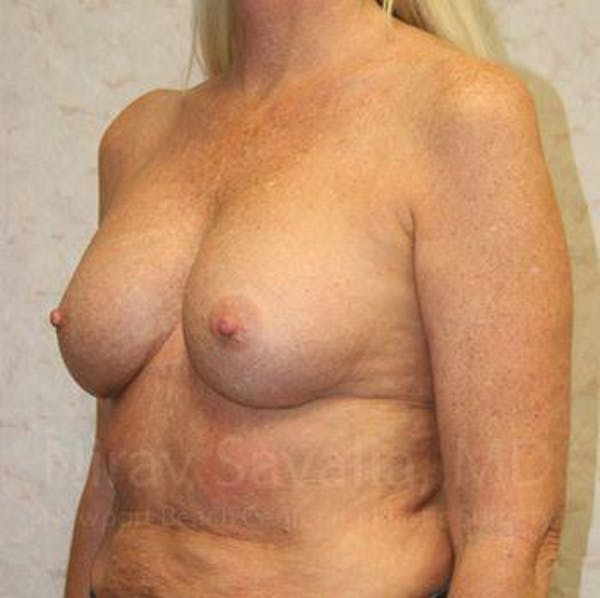 Breast Implant Revision Gallery - Patient 1655444 - Image 9