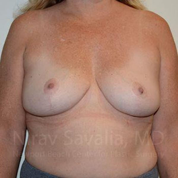 Breast Lift without Implants Gallery - Patient 1655446 - Image 2