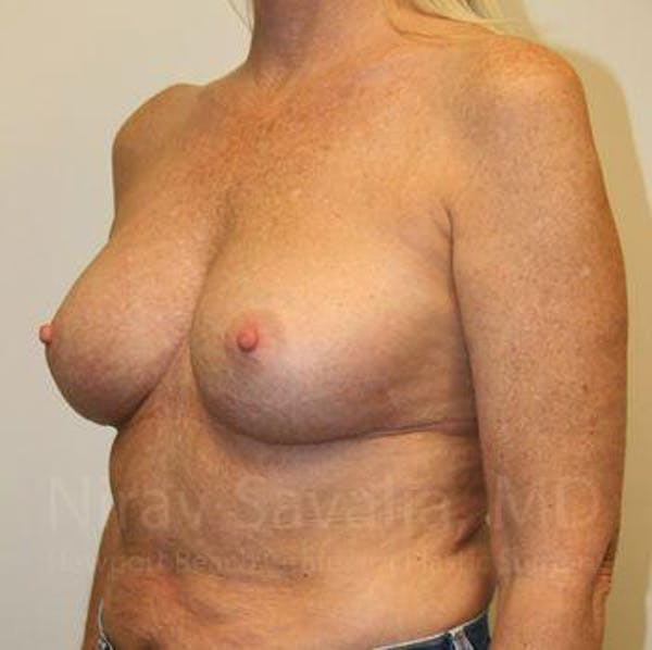 Breast Implant Revision Gallery - Patient 1655444 - Image 10