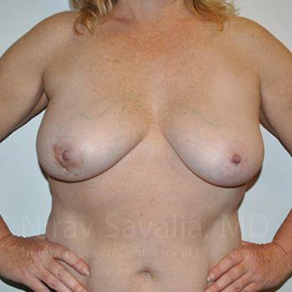 Breast Lift without Implants Gallery - Patient 1655446 - Image 3