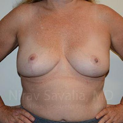 Breast Lift without Implants Gallery - Patient 1655446 - Image 4