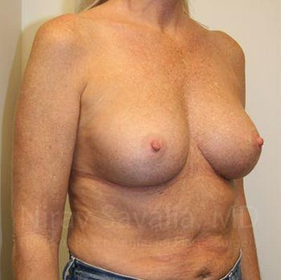 Breast Implant Revision Gallery - Patient 1655444 - Image 12