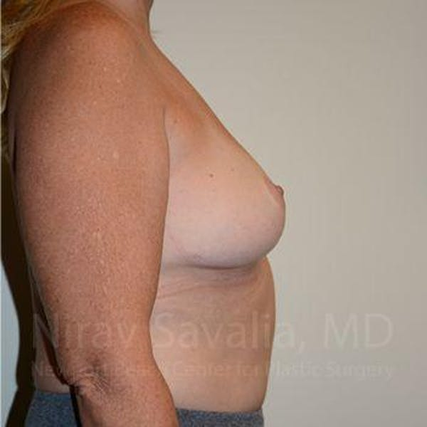 Breast Lift without Implants Gallery - Patient 1655446 - Image 6