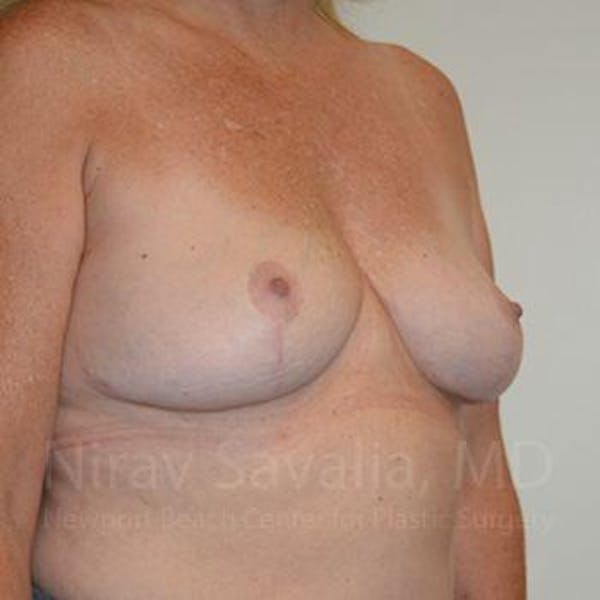 Breast Lift without Implants Gallery - Patient 1655446 - Image 8