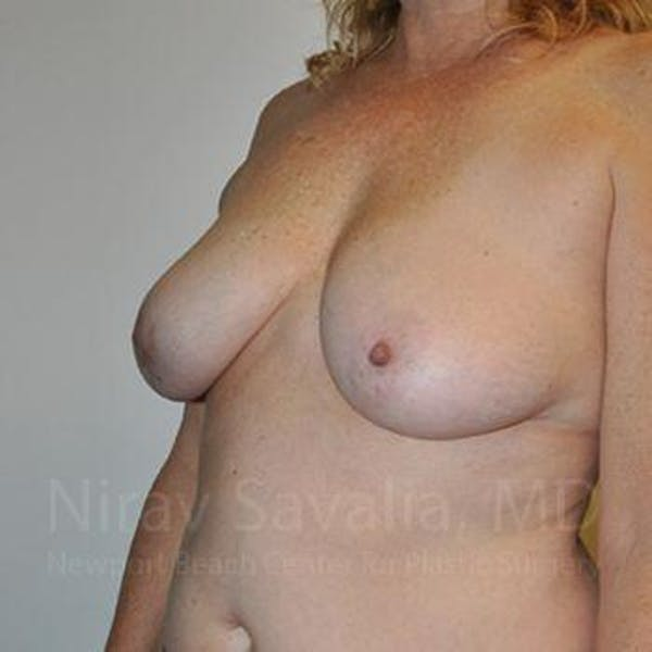 Breast Lift without Implants Gallery - Patient 1655446 - Image 9