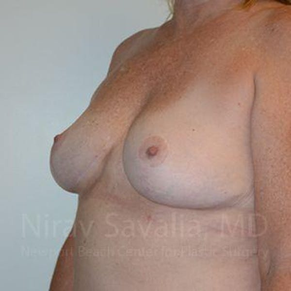 Breast Lift without Implants Gallery - Patient 1655446 - Image 10