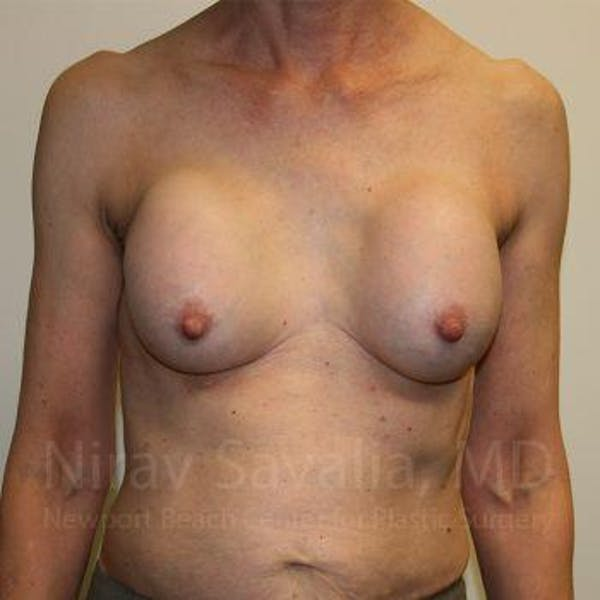 Breast Implant Revision Gallery - Patient 1655447 - Image 1